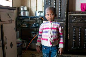 Four-year-old Owami Phongolo suffers from moderate malnutrtion. Here she stands in the kitchen of their four-roomed house in KwaSibongile Hostel, Durban