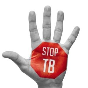 What is behind SA's higher TB numbers?