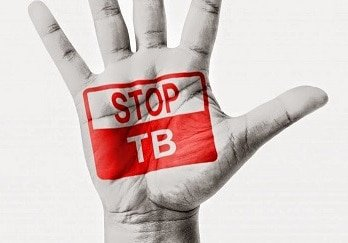 WHO estimates 20% more TB cases in SA than previously thought