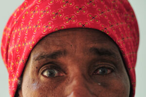 Close up of a woman with cataracts in both eyes.